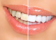 Schöne weiße Zähne
