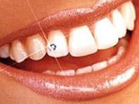 Zahnschmucksteinchen