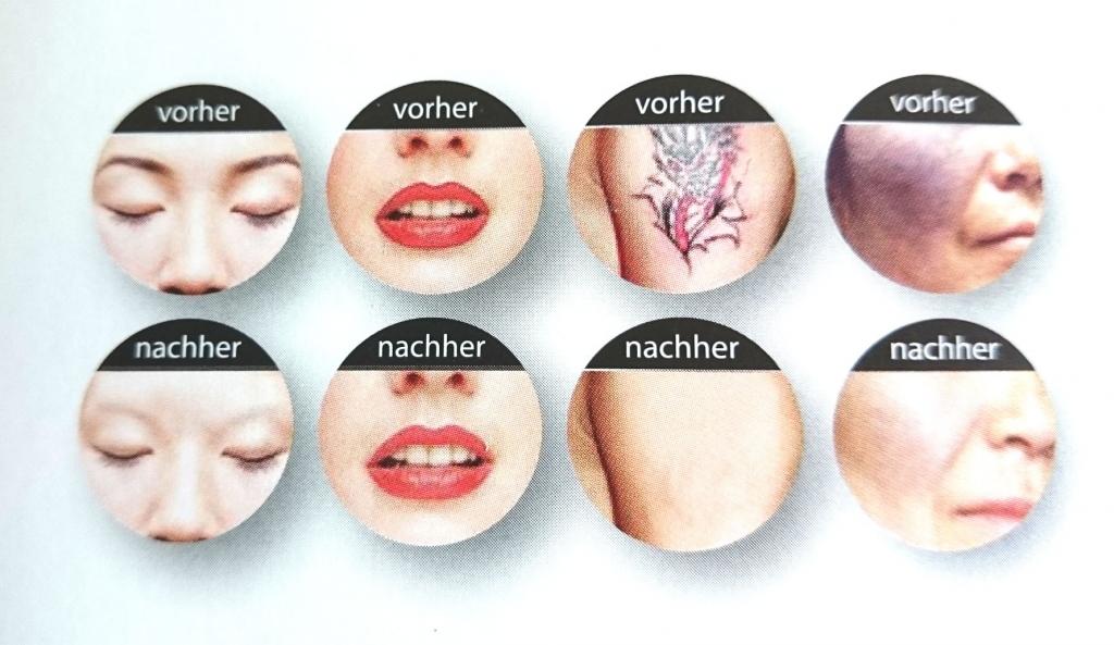 vorher-nachher - Entférnung von Permanent Make-up, Tattoo  und Altersflecken