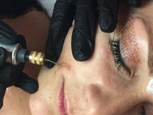 Steffi bei der Narbenbehandlung