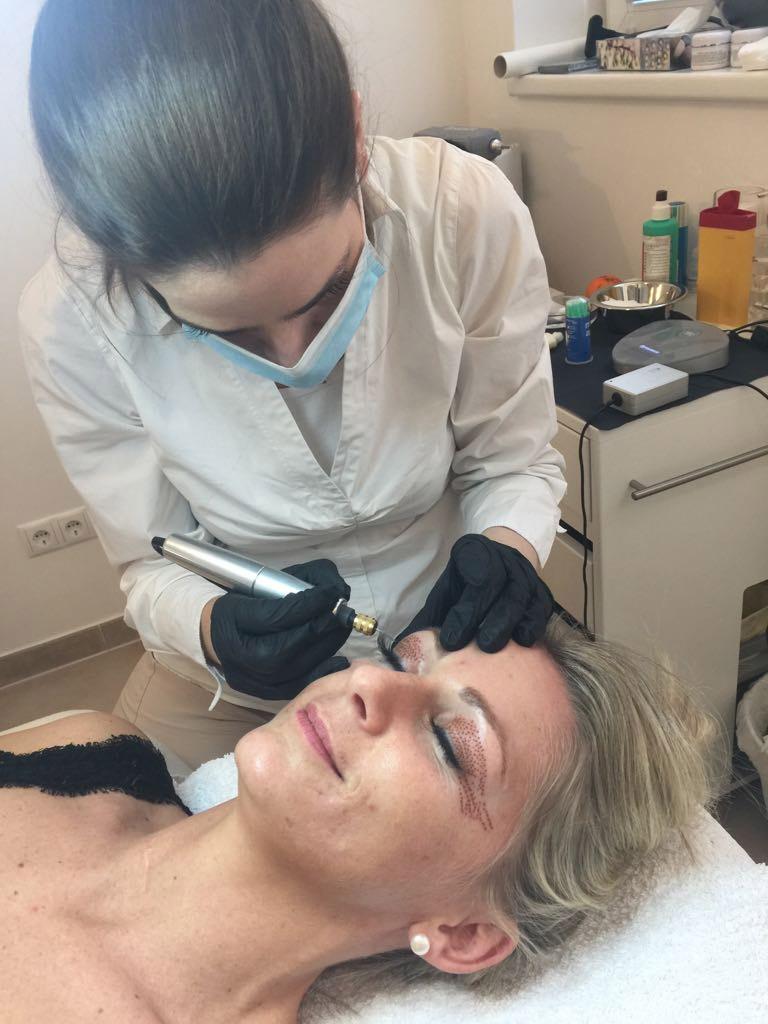 Steffi bei der Oberlidstraffung mit Fibroblast