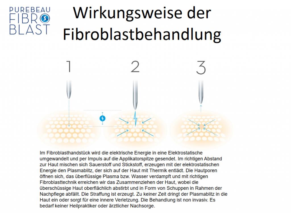 Wirkungsweise der Fibroblastbehandlung