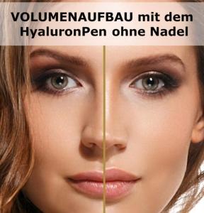Volumenaufbau mit dem HyaluronPen ohne Nadel