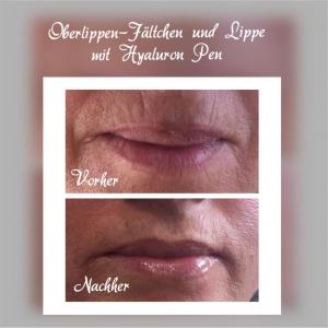 Behandlung der Oberlippen-Fältchen und Lippe mit dem HyaluronPen