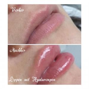 Lippen mit Hyaluronpen